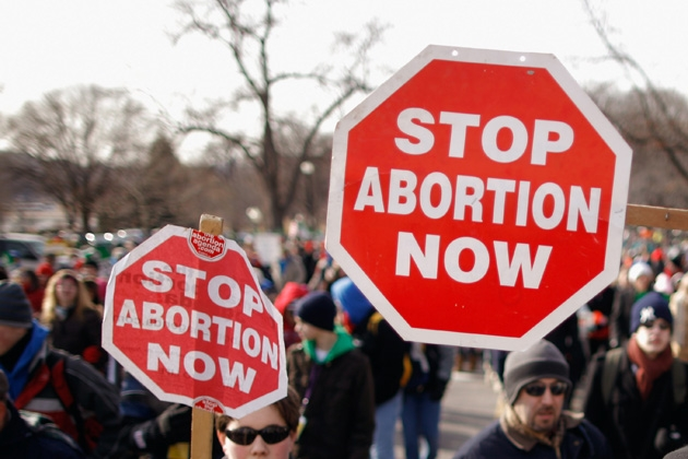 why we should stop abortion Today, we'll discuss ten reasons not to have an abortion (for two more  fathers  attempting to stop abortions should read this article siblings.