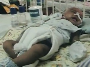millions-of-babies-died-from-malnutrition
